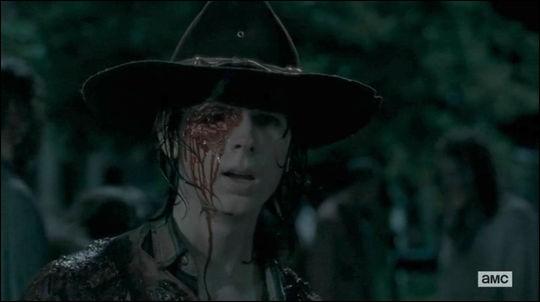 Carl se fait tirer dessus et est touché à l'œil.Qui lui a fait ça ?