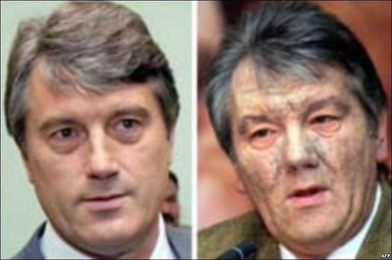 """On se rappelle du visage de Viktor Iouchtchenko, leader ukrainien de la """"Révolution Orange"""", qui avait changé si brutalement : que lui était-il arrivé ?"""