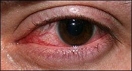 La sécheresse de l'oeil (syndrome sec) peut être à l'origine d'une pathologie très douloureuse. Laquelle ?