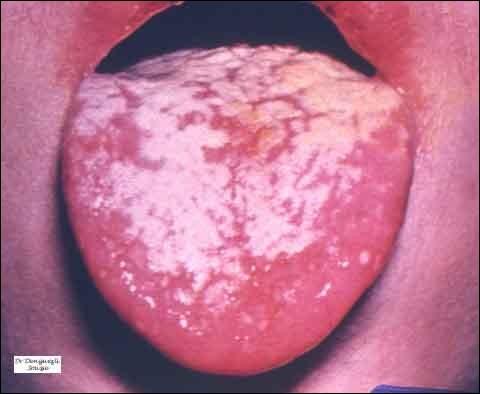 Certaines maladies infectieuses peuvent être à l'origine d'un champignon, (mycose) sur la langue. On lui donne le nom charmant de...