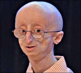 """La """"progeria"""" est une maladie aussi exceptionnelle que médiatique. Comment se traduit-elle ?"""