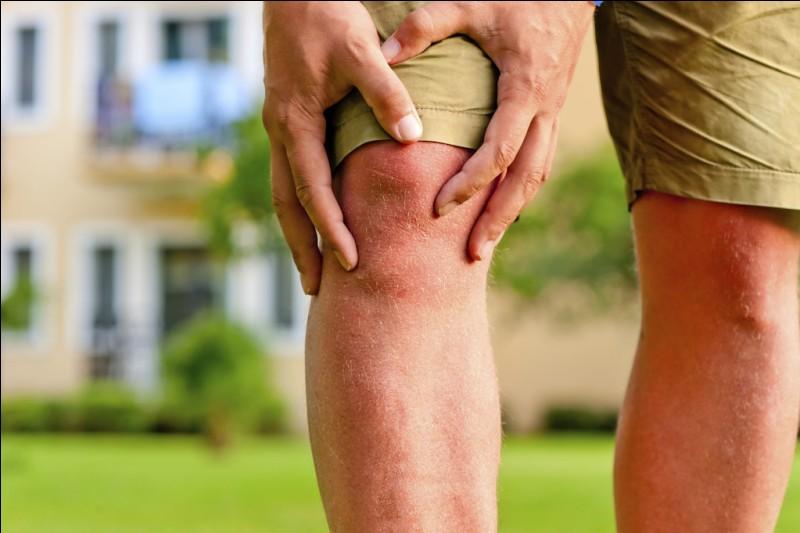 Lorsque l'on a une disparition partielle ou complète de la mobilité d'une articulation, on a ...