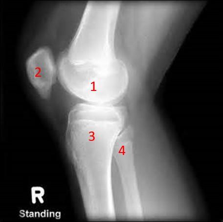 On continue ce quiz avec le membre inférieur.Quelle articulation est présente sur cette radiographie ?