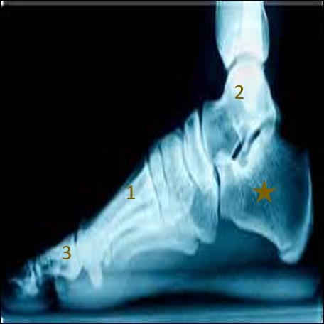 Et on termine ce quiz avec le pied via cette radiographie en vue du côté.Comment se nomme l'os marqué par une étoile marron ?