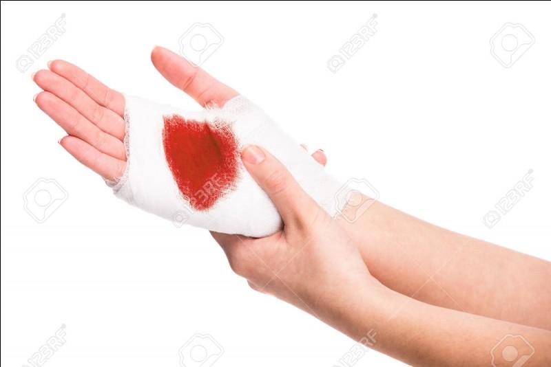 Votre petit(e) ami(e) s'est blessé et vous ne savez pas comment. Comment réagissez-vous ?