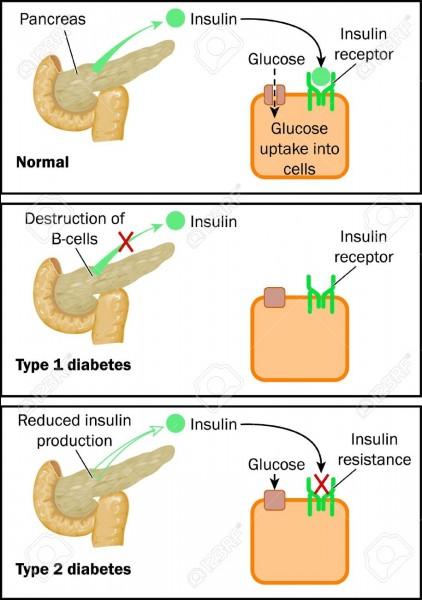 Les arguments en faveur du diabète de type 2 sont des arguments cliniques de probabilité :