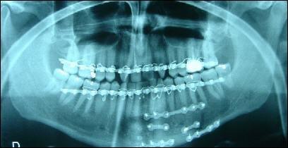 Quel est votre diagnostic après avoir regardé cette radiographie ?