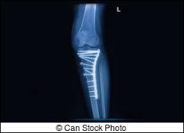 Suite à une chute en skateboard, Jérémy a dû être opéré.Quel os le chirurgien a-t-il réparé avec une plaque et de nombreuses vis ?