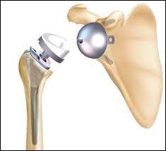 Quels sont les deux os concernés par cette prothèse ?