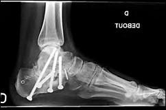 Mon grand-père est tombé du toit. Le chirurgien a du lui mettre des vis. Quelle partie du corps s'est-il fracturé ?