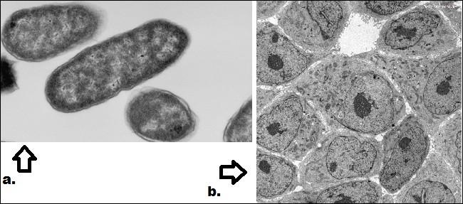 Quelle image nous montre des cellules procaryotes ?