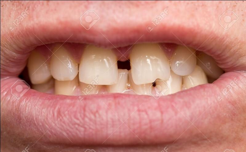 Quelle branche de la médecine consiste à corriger la position des dents ?