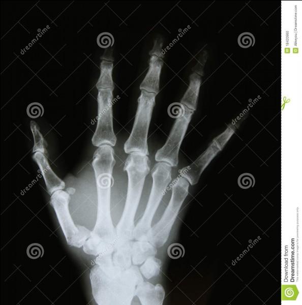 Les rayons X utilisés en imagerie médicale ont été inventés en 1895 par...
