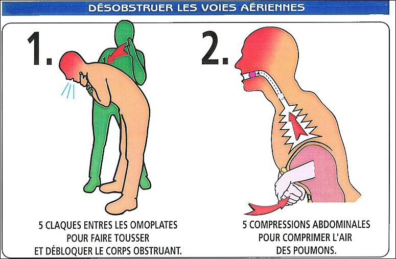 Quelle méthode dois-je utiliser si une personne fait un étouffement avec obstruction totale des voix respiratoires ?
