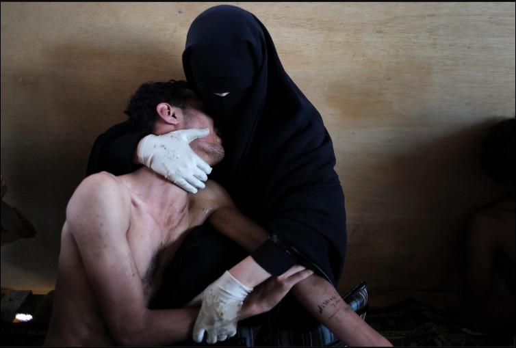 De quoi souffre Zayed âgé de 18 ans réconforté par sa maman Fatima al-qaws après avoir participé à une manifestation au Yémen ?