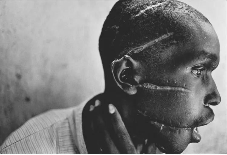 Pourquoi cet Hutu s'est-il fait mutilé le visage par la milice Hutus lors du génocide des Tutsis au Rwanda ?