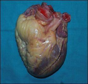 Le coeur est à peu près gros comme le poing.