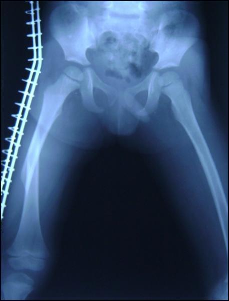 Le fémur est l'os le plus long du corps humain.