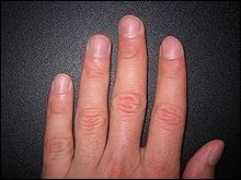 Si nous passions la vie sans nous couper les ongles, quelle longueur atteindraient ceux-ci ?