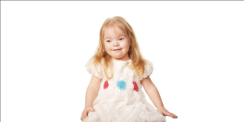 La trisomie 21 est une anomalie chromosomique congénitale.