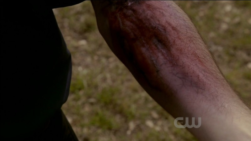Comment guérir les blessures infligés par les loups-garous aux vampires ?
