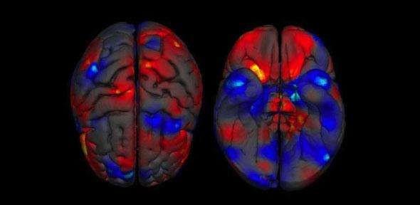 """Le cerveau des femmes reste """"jeune"""" plus longtemps que celui des hommes. Vrai ou faux ?"""