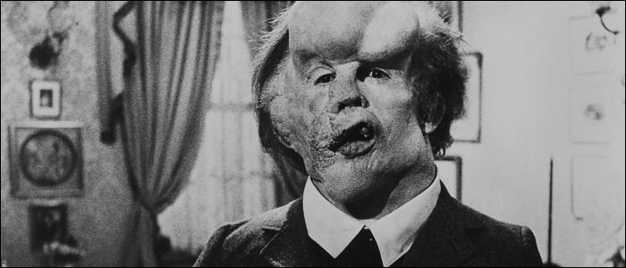 """Dans quel film de David Lynch, un homme accusé d'être un monstre dit-il : """"Je ne suis pas un animal, je suis un être humain !"""" ?"""