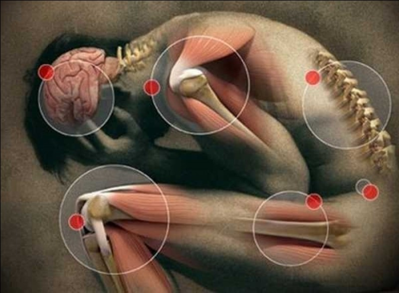 Où a-t-on mal quand on souffre de gonalgie ?