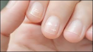 Les taches blanches sur les ongles sont le signe d'un manque de calcium