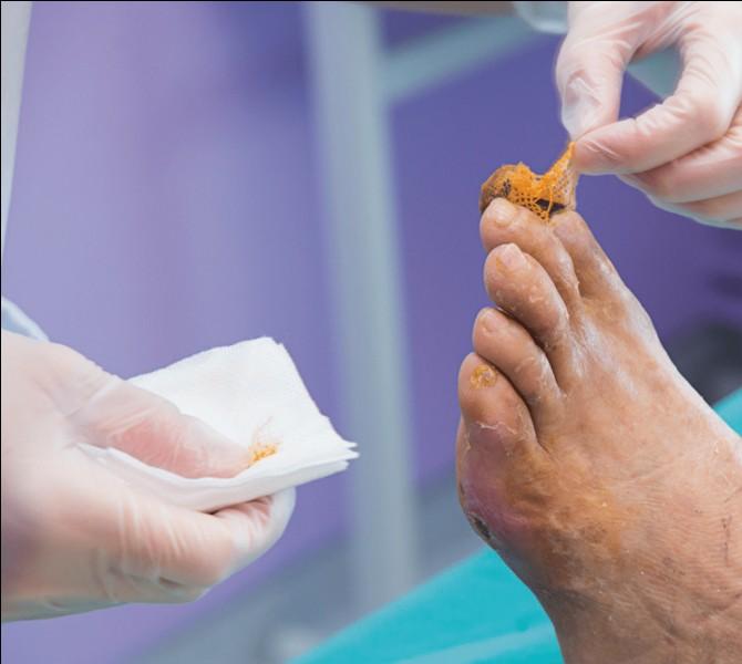 Merci pour l'information. Concernant les soins de beauté des pieds, j'avais une question basique pour vous, comment savoir que l'ongle est correctement coupé ?