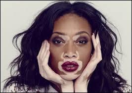 Le vitiligo est une maladie de peau caractérisée par l'apparition de taches blanches.