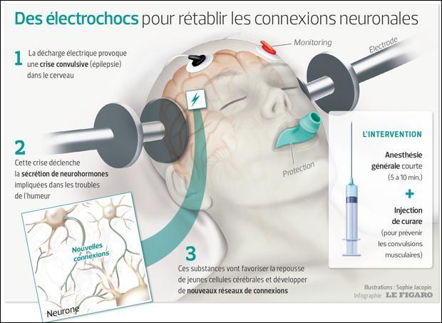 Dans les cas les plus extrêmes, on peut avoir recours à des interventions. Laquelle des trois ci-dessous ne consiste pas à envoyer des courants électriques dans le cerveau ?