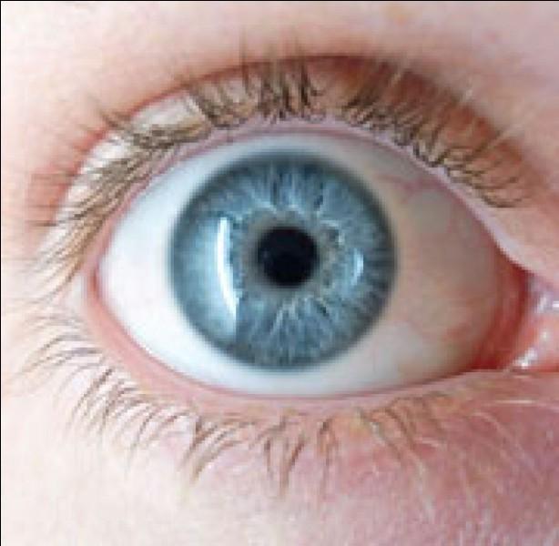 """Laquelle de ces propositions signifie """"dont les yeux ont une différente direction"""" ?"""
