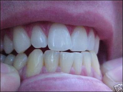 Grincer des dents pendant la nuit, est-ce le signe d'un trouble du sommeil ?