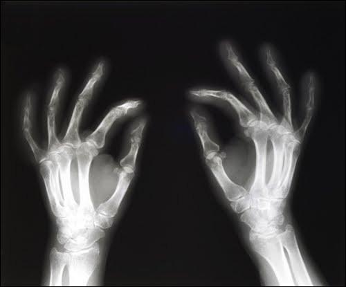 De nos jours, l'anatomie évolue avec les progrès des moyens d'exploration (scanner, microscopie électronique, échographie…), qui sont de plus en plus performants et ont révolutionné chacun à leur façon notre vision du corps humain, d'un point de vue anatomique, histologique ou encore fonctionnel. Laquelle de ces techniques d'imagerie utilise les rayons X ?