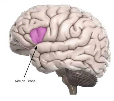 Qu'est-ce qu'une aphasie de Broca ?