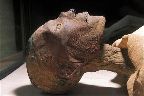 Ce pharaon meurt à 36 ans (1150 à 1145 av. J. -C) d'une terrible épidémie de variole. Qui est-il ?