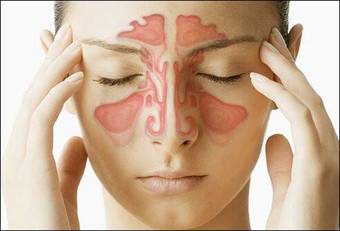 Comment s'appelle la pathologie correspondant à l'inflammation des muqueuses recouvrant l'intérieur des sinus ?