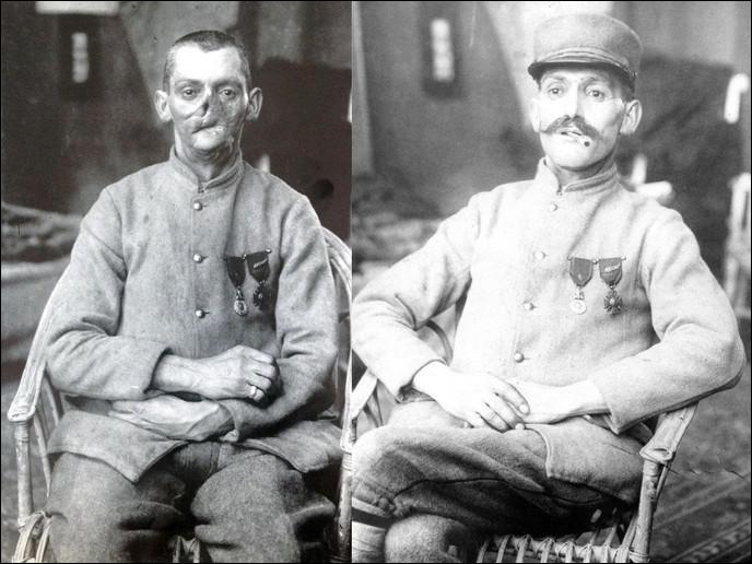 Vous connaissez certainement les gueules cassées, des vétérans de la Première Guerre mondiale défigurés par des attaques ennemies. Avant l'arrivée de la chirurgie esthétique, comment cachaient-ils leurs cicatrices ?