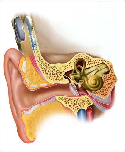 Des atteintes de l'oreille moyenne et du tympan peuvent être provoquées par :