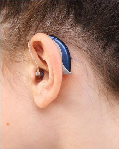 Les professionnels qui délivrent et adaptent les prothèses auditives sont :