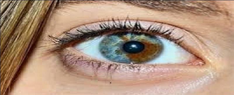 Certains yeux ont des couleurs magnifiques. Quel nom porte celle de l'illustration ?