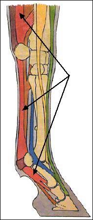 Les flêches indiquent quel tendon ?