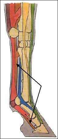 Quel tendon est désigné par les flèches ?