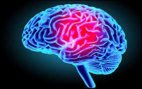Comment appelle-t-on le trouble neurologique dans lequel un individu exprime un fort désir spécifique de subir l'amputation d'un ou plusieurs membres du corps en bon état ?