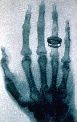 Physique : Saviez vous que les rayons X s'appellent ainsi parce que le scientifique qui les a découverts ne savait quel nom leur donner ? Au fait, quel était ce physicien bien peu inspiré ?