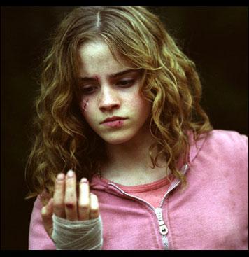 Dans 'Harry Potter et le Prisonnier d'Azkaban', que dit Hermione au professeur Lupin après qu'il ai dit être un loup-garou ?