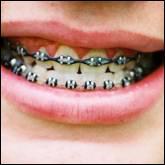 Je vous mets des appareils dentaires, qui suis-je ?