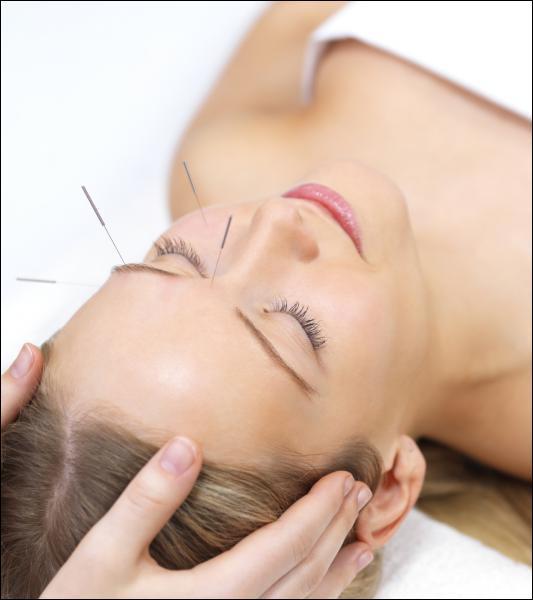 De quel pays d'Asie l'acupuncture est-elle originaire ?
