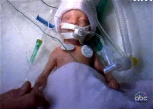 Combien pèse la fille de Callie à sa naissance ?